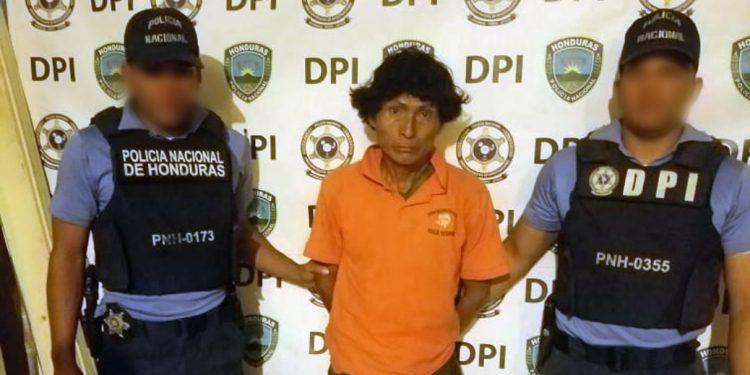 Honduras: cae hombre por castigar a su hijo quemándole un brazo